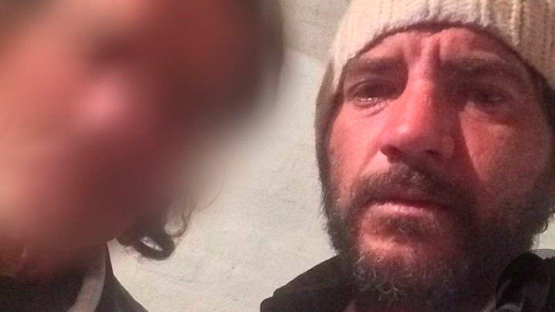 San Juan: mataron a golpes a un estadounidense y detuvieron a una pareja
