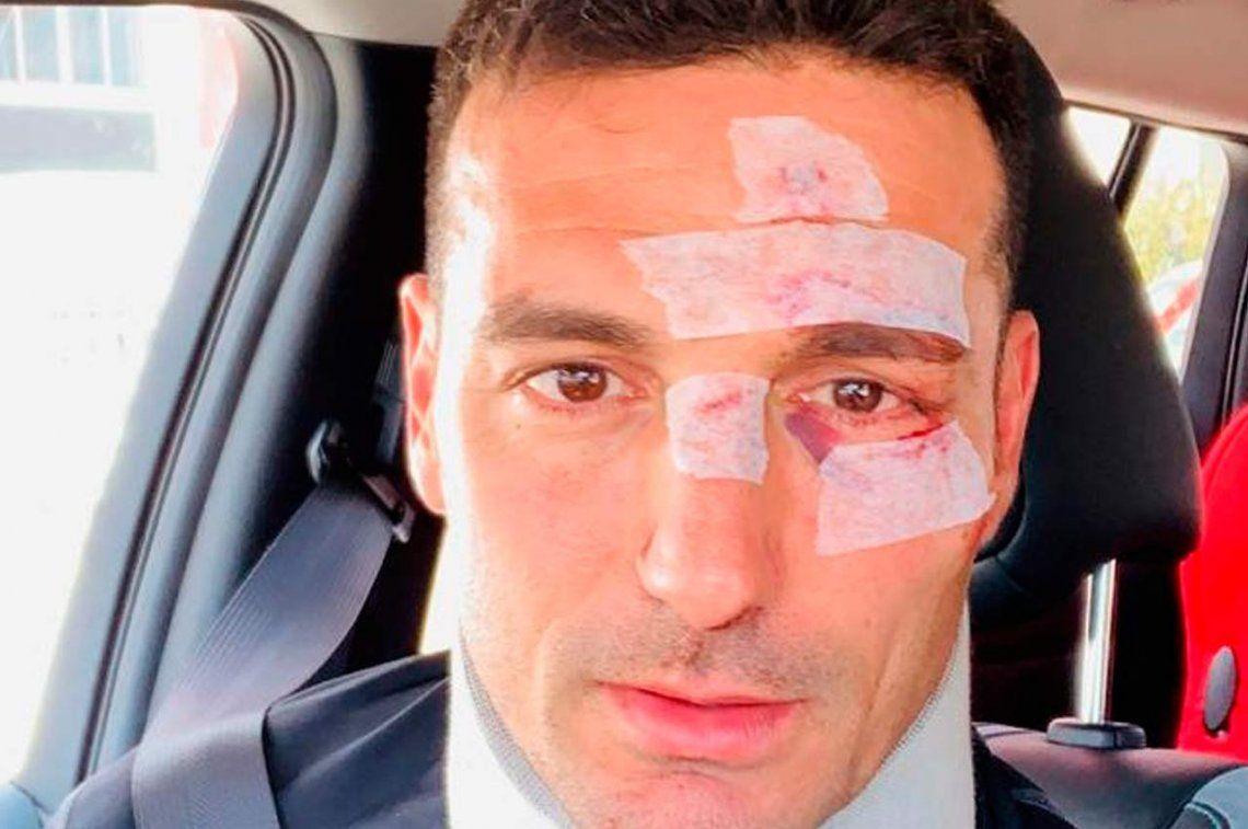 Scaloni fue atropellado por un auto en Mallorca