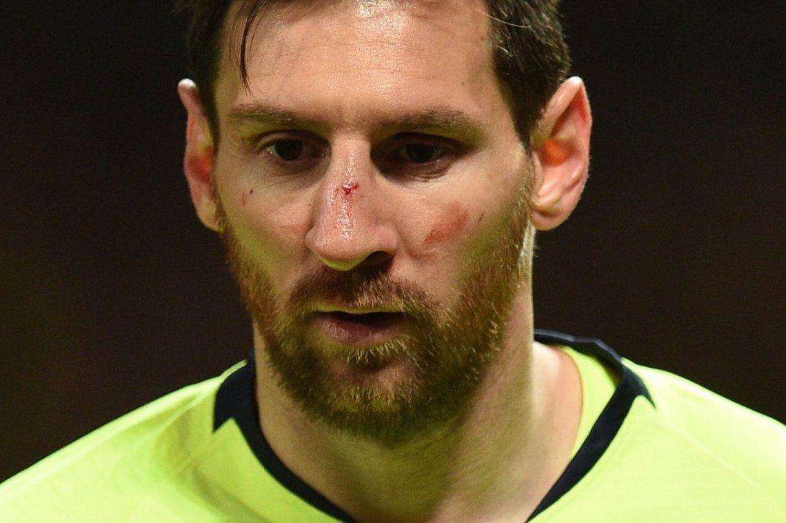 Solo un susto: Lionel Messi ya está recuperado del golpe en su nariz