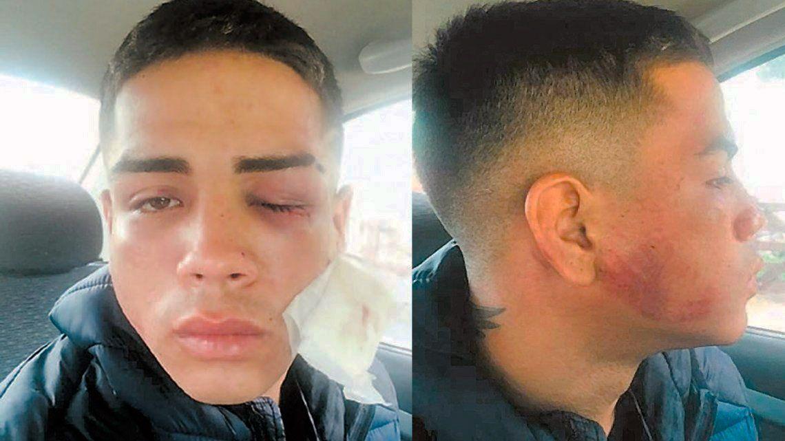 Patota atacó a golpes y patadas a joven en Pinamar