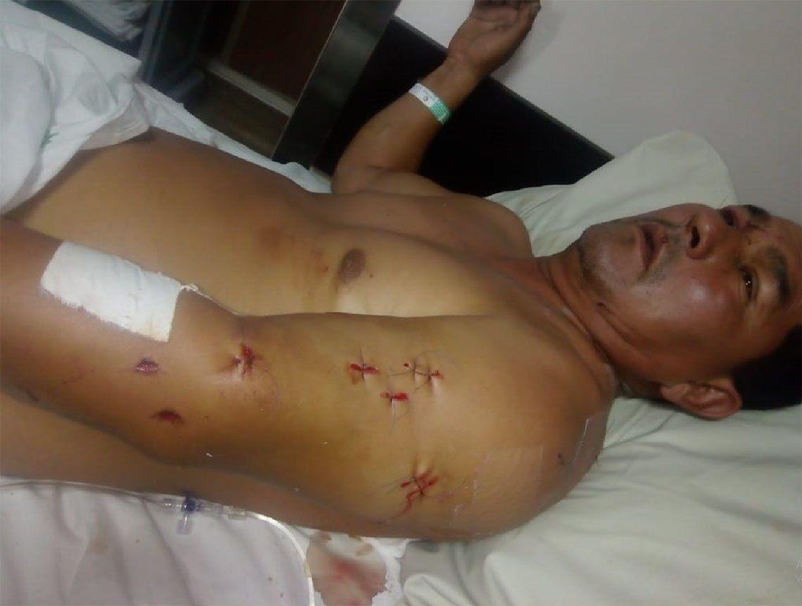 Quilmes: le dio 20 puñaladas a su ex suegro y chocó para simular un accidente