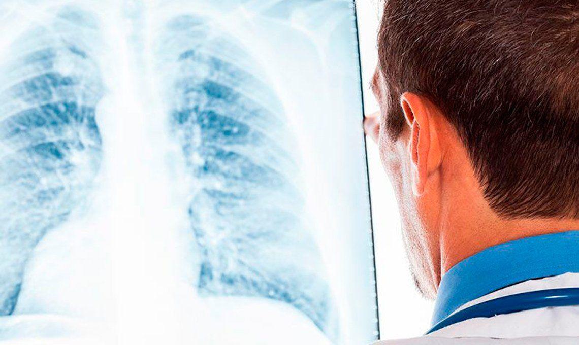 Hipertensión pulmonar: una enfermedad que tiene difícil diagnóstico
