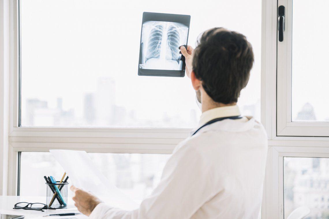 La Anmat aprobó el pembrolizumab, el medicamento que elimina el cáncer de pulmón en el 80% de los casos