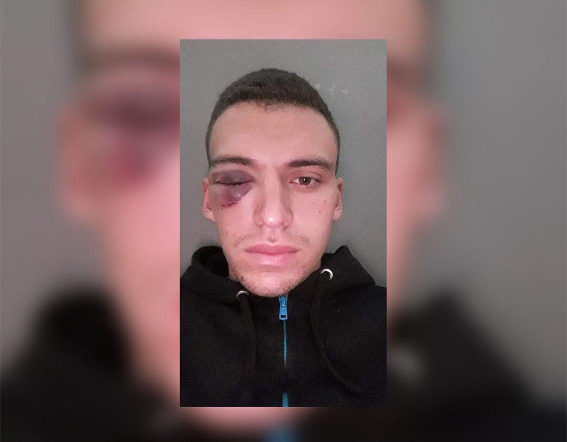 Brutal agresión al arquero suplente de Central Córdoba por la Copa Santa Fe