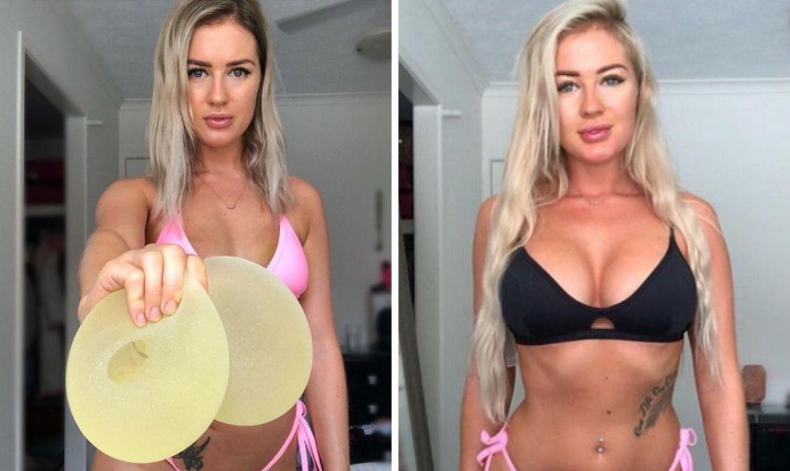 Una mujer australiana reveló cómo la enfermaban sus prótesis mamarias de US$6000 y cómo mejoró su vida cuando se los quitó