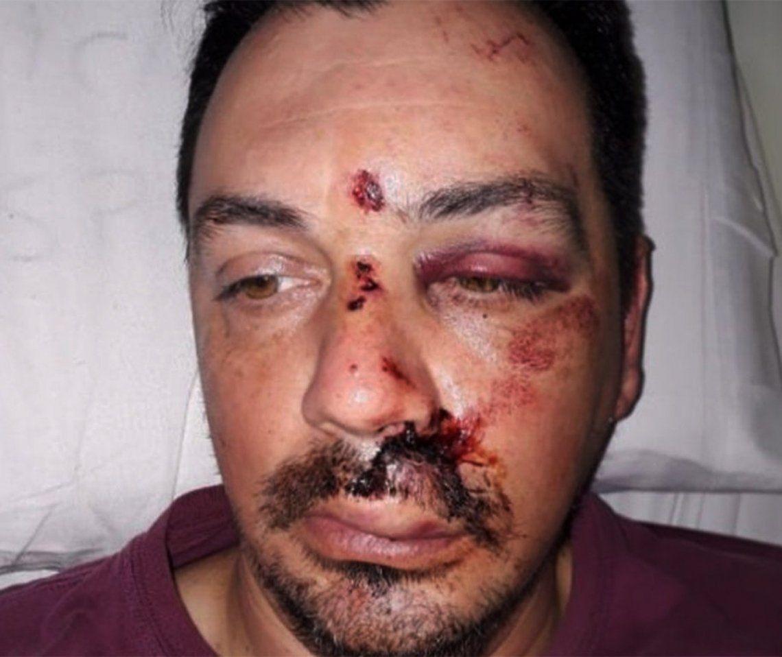 Florencio Varela: exigen la detención del agresor del colectivero Franco Almirón