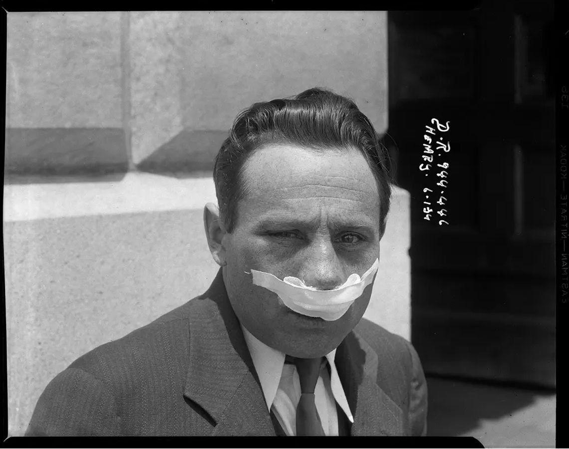 Una víctima de asalto posa para la cámara - 1934. La fotografía ahora se conoce como la foto de Chinatown