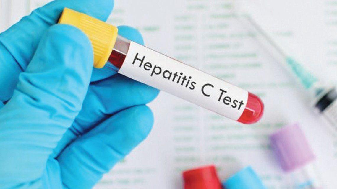 En Argentina, hay 332 mil personas con hepatitis C