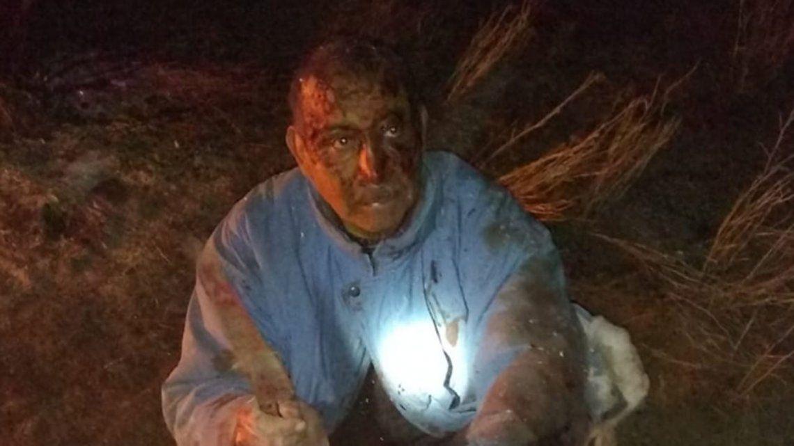 Río Negro: se peleó cuerpo a cuerpo con un puma para salvar a su perro y lo encontraron deshidratado en el campo