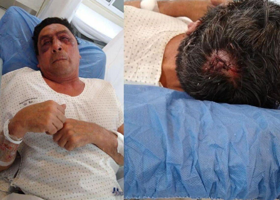 Florencio Varela: lo asaltaron y casi lo matan a golpes con una llave cruz