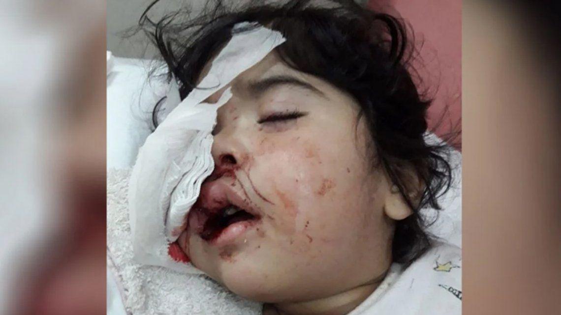 Santiago del Estero: una nena dormía en brazos de su madre y recibió un piedrazo en el ojo
