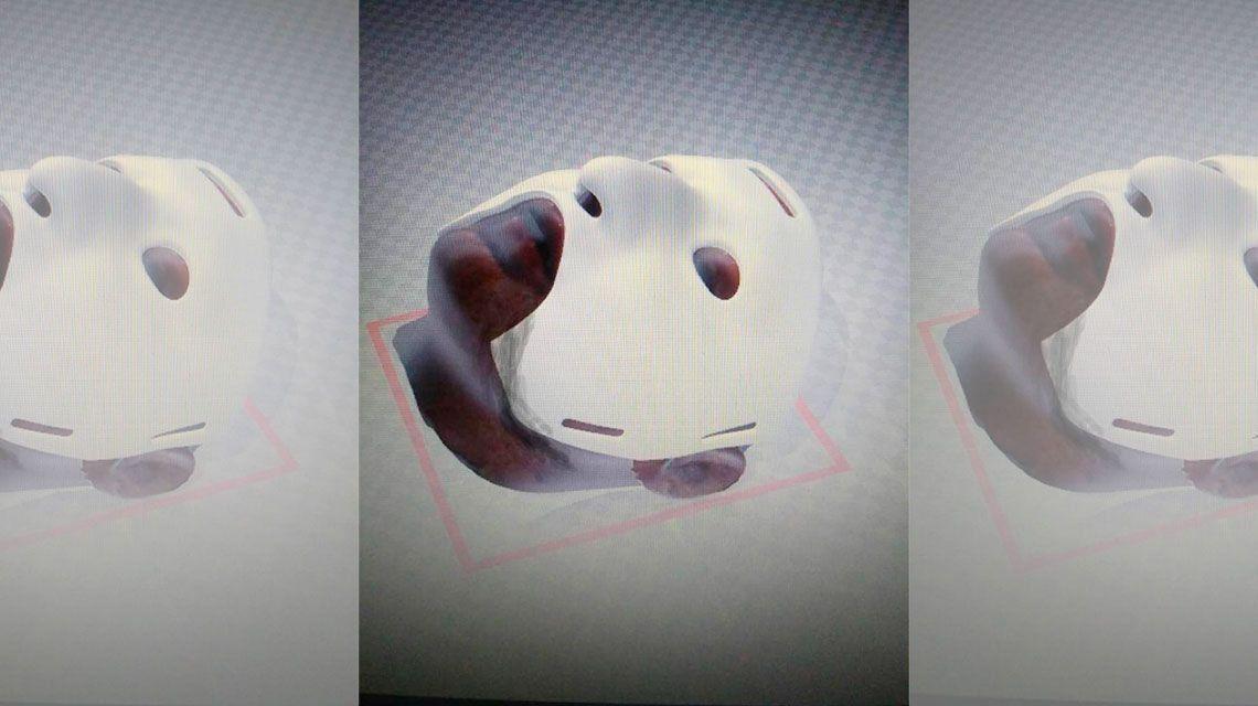 Cirujanos argentinos crearon máscara 3D para reconstrucción facial en casos de quemaduras
