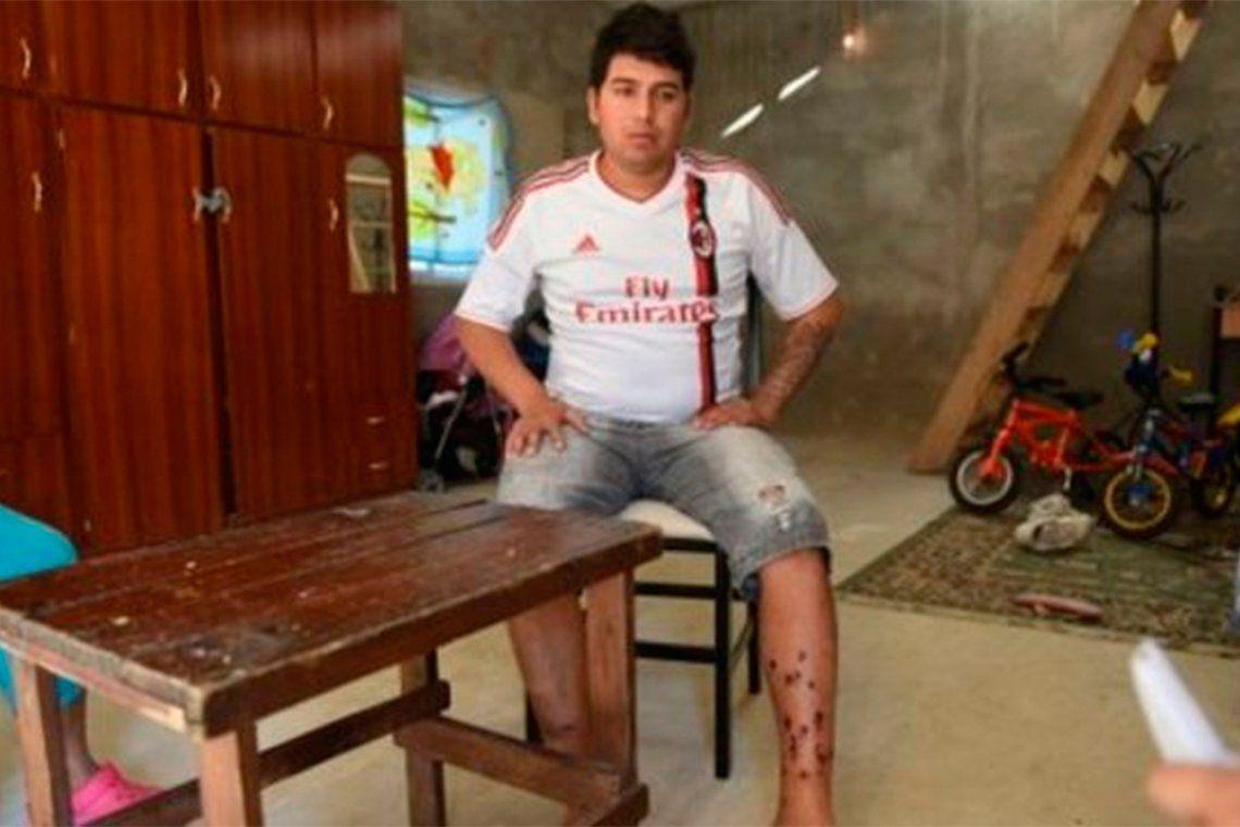 Rosario: mataron a tiros a Ema Pimpi Sandoval, condenado por el atentado a la casa de Bonfatti