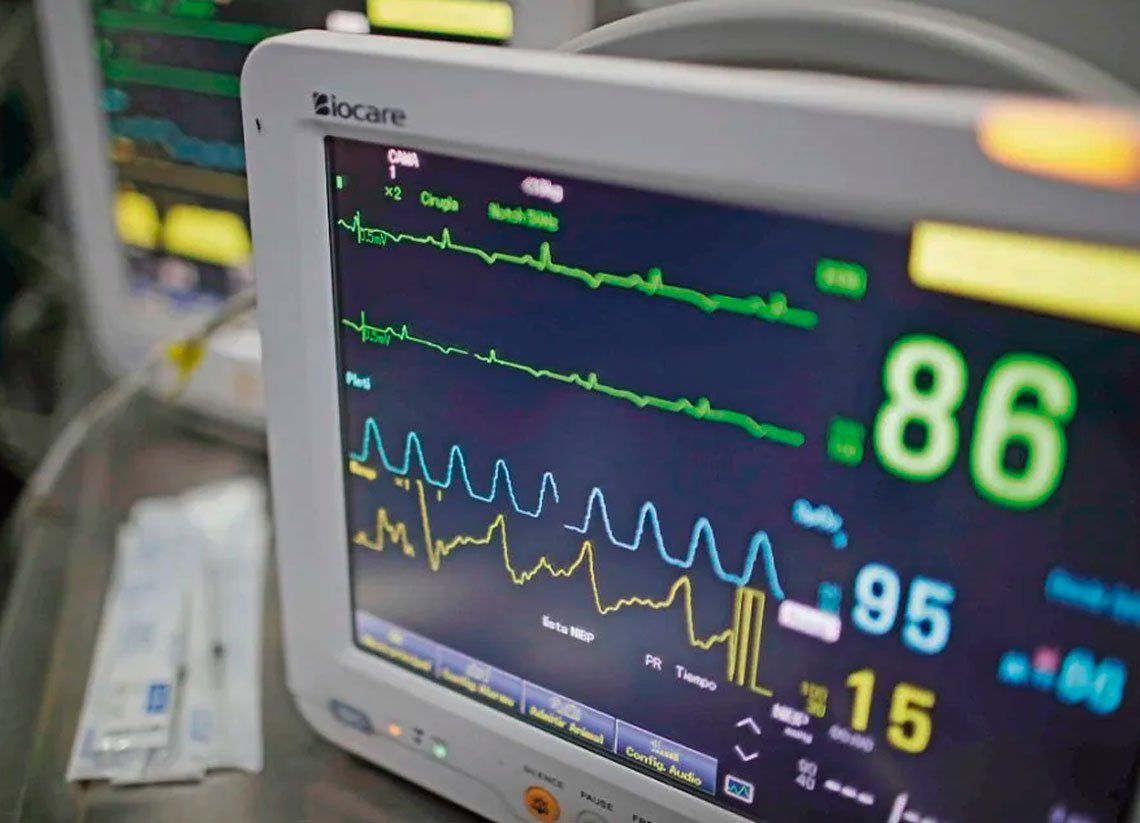 La UBA desarrolló un dispositivo que amplía capacidades de los respiradores mecánicos