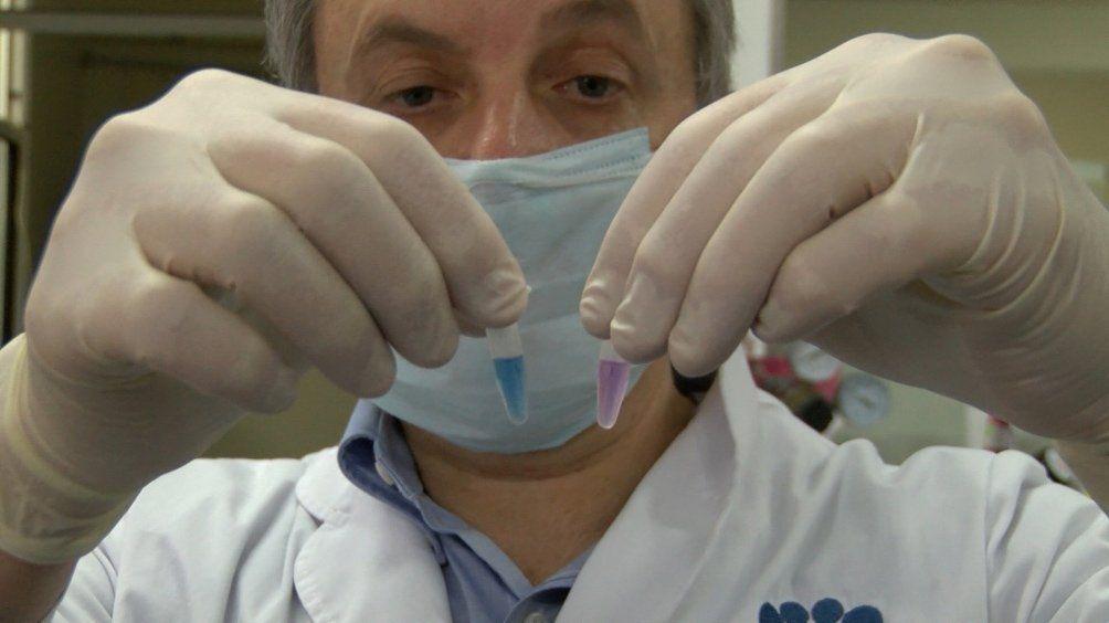 Coronavirus: producirán por mes un millón de test rápidos en Argentina