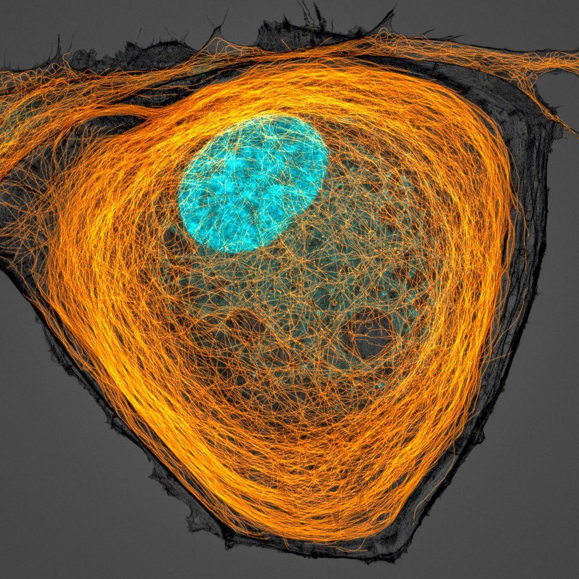 7º puesto | Jason Kirk | Microtúbulos (naranja) dentro de una célula
