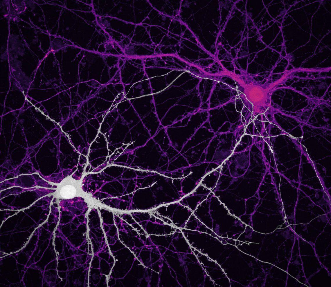 Noveno lugar | Jason Kirk y Quynh Nguyen | Conexiones entre neuronas del hipocampo