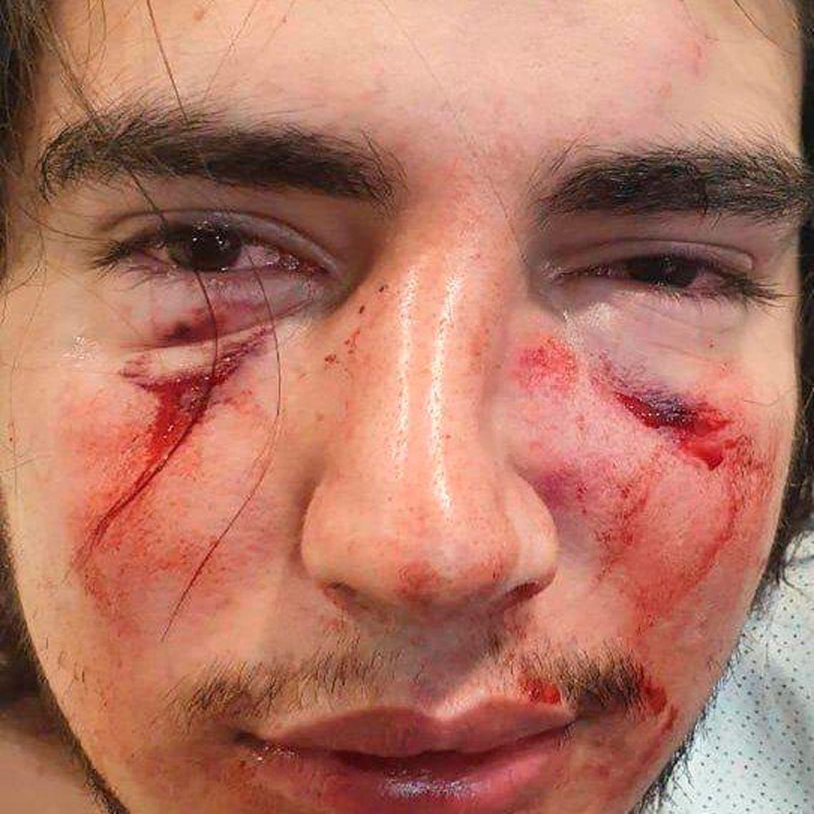 Córdoba: denuncian brutal golpiza de rugbiers contra un joven de 18 años