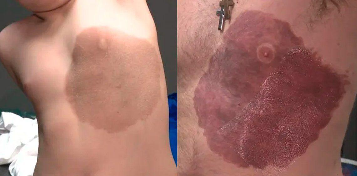 Canadá: se tatuó la mancha de nacimiento de su hijo para darle confianza