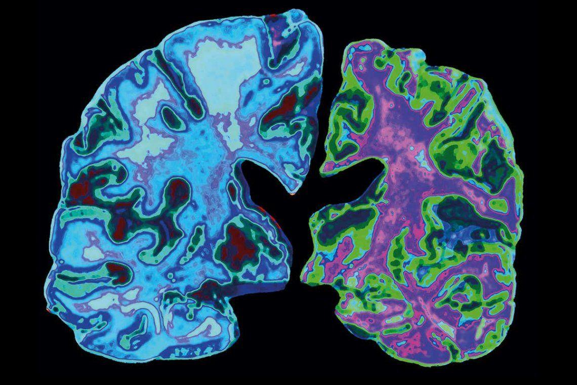 La cirugía mayor puede acelerar el Alzheimer