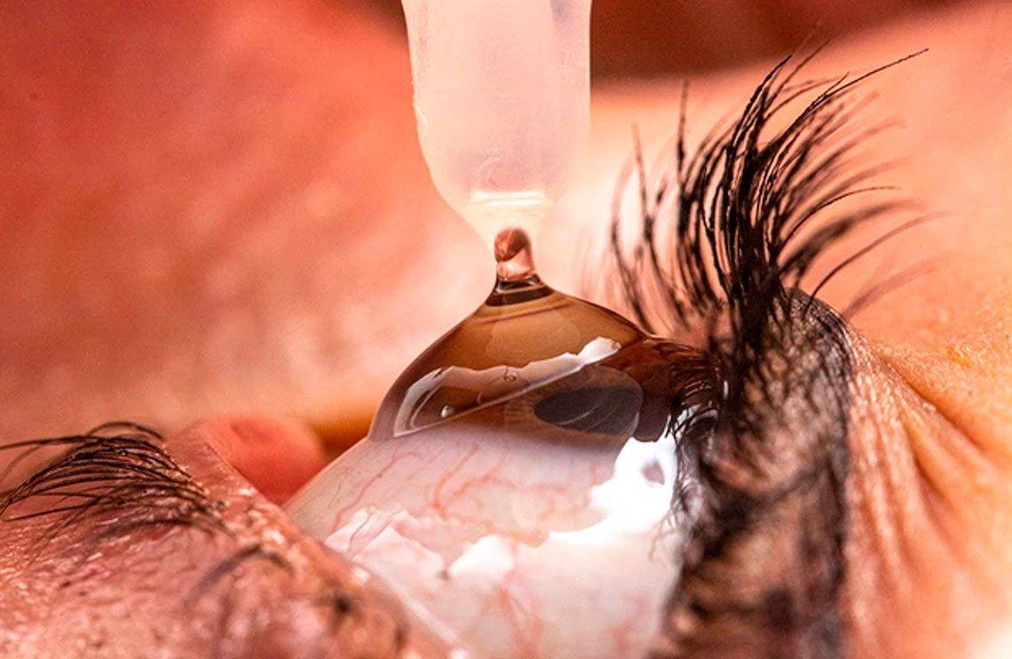 Seleccionado - Gota para un solo ojo. Andre Castellan / RPS SPotY