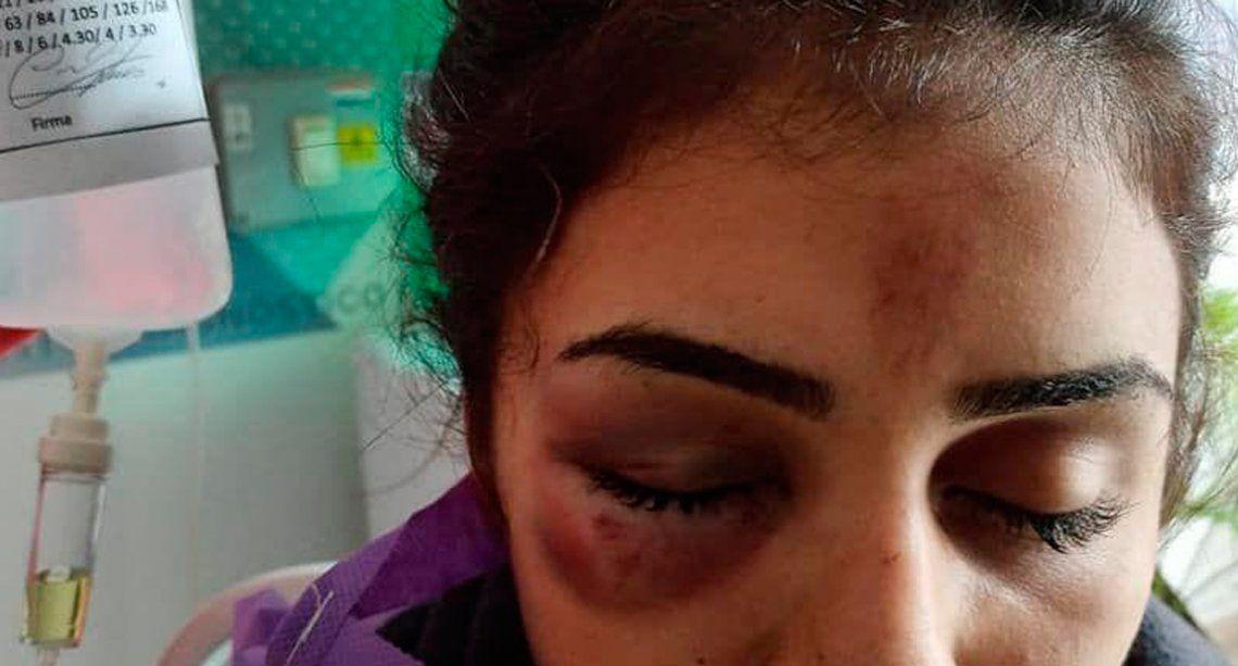 Córdoba: tres mujeres le fracturaron el cráneo a una chica por una foto