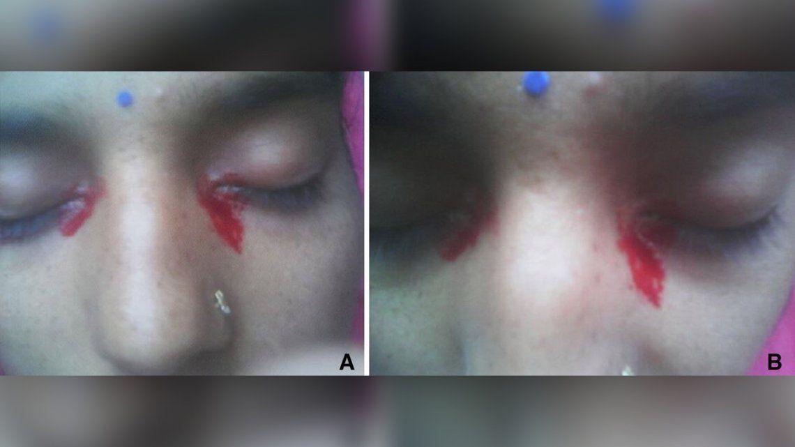 Los médicos descubrieron que en un caso raro la mujer tenía su menstruación por los ojos.