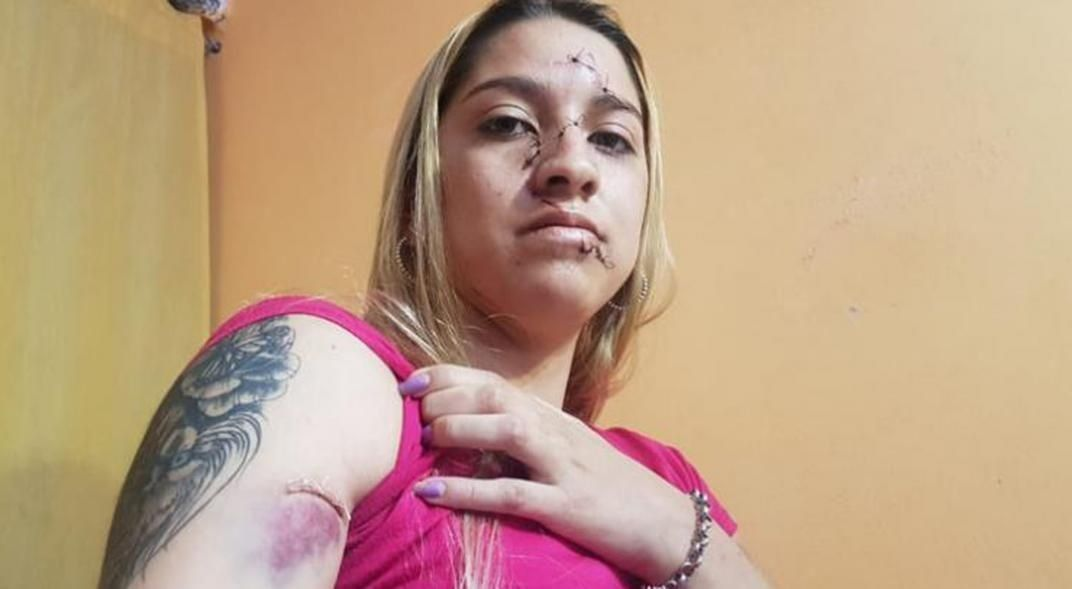 Fiesta clandestina: joven agredida en Córdoba.
