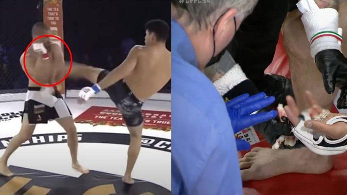 MMA: perdió un dedo tras una fuerte patada de su rival.
