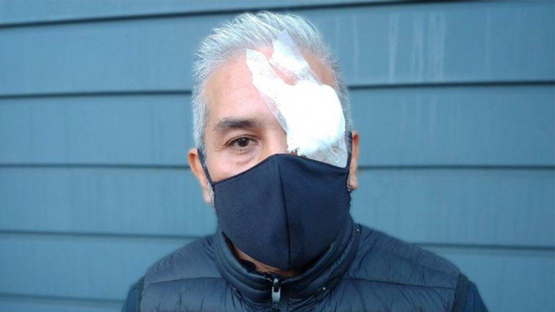 Quilmes: Fue asaltado y perdió un ojo por un culatazo.