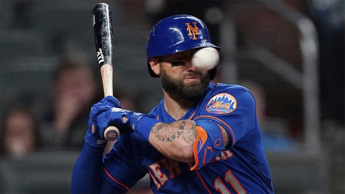 Figura de béisbol recibe un pelotazo en la cara a 150 km/h.