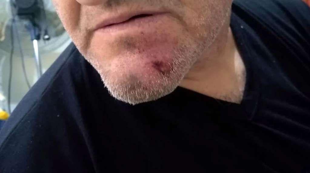La agresión a Rodríguez ocurrió en Rafael Castillo