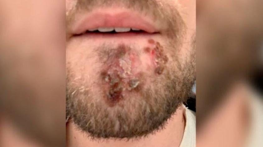 Graves lesiones en la piel.