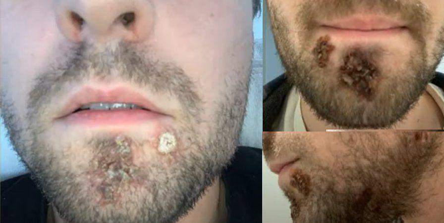 Usó la afeitadora y lo atacó una bacteria comercarne