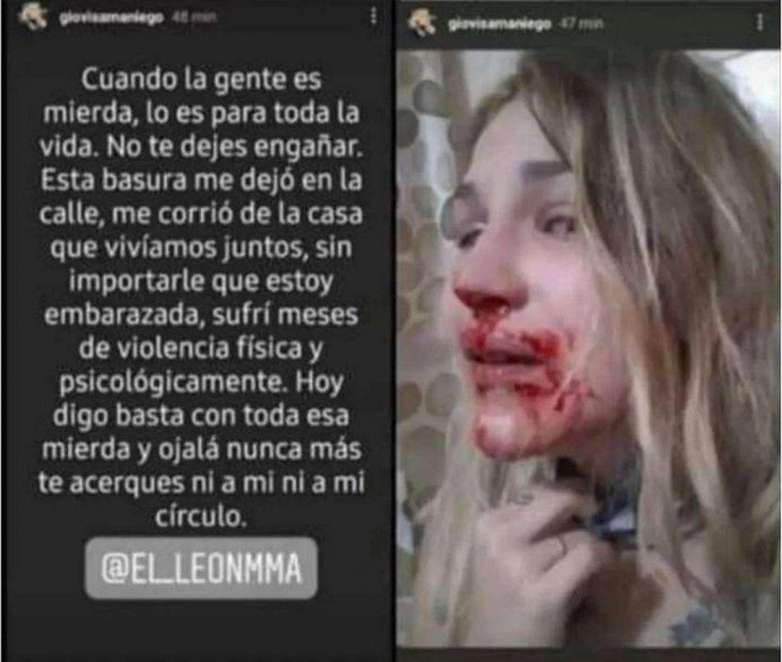Salta: luchador de la MMA desfiguró a su pareja embarazada