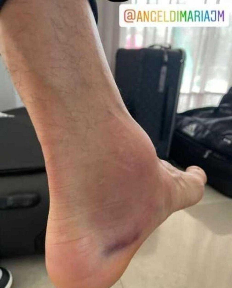 Así quedó el tobillo de Ángel Di María.
