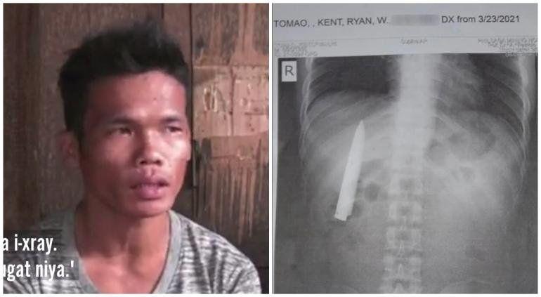 Filipinas: lo apuñalan y tras 14 meses descubre algo extraño