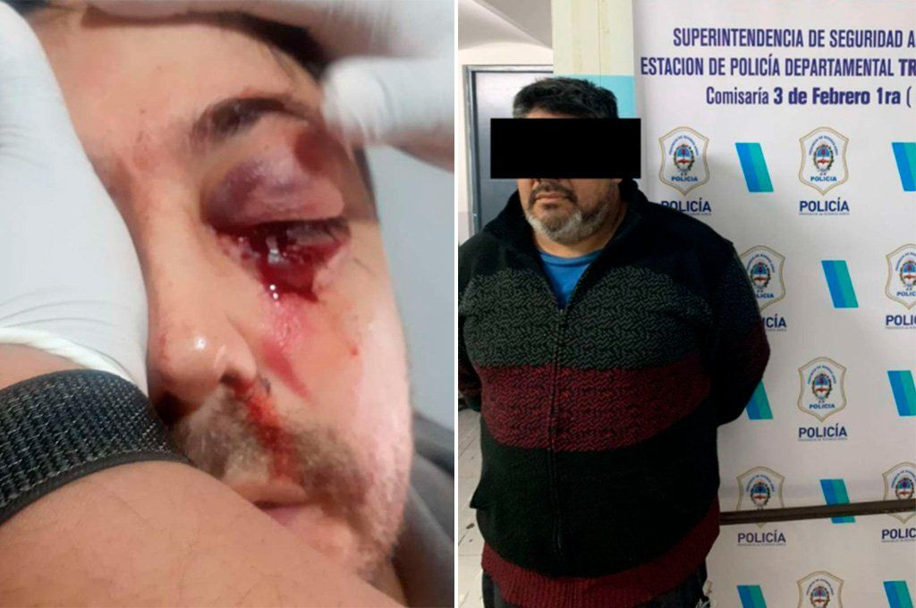 A la izquierda la lesión ocular de Esteban Bieiaszewzki y a la derecha Alberto Morea